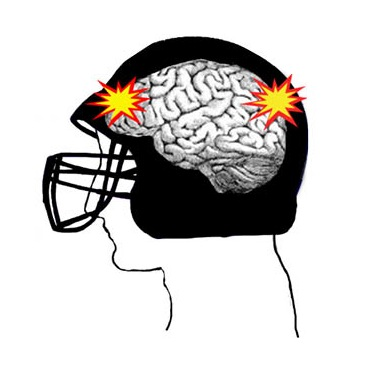 Concussed: Walpole's Youth Starts Exploring Ways to Avoid Head Injuries in the Future by Joining the New Flag Football League